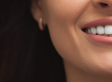 Can Cosmetic Dentistry Improve My Smile?