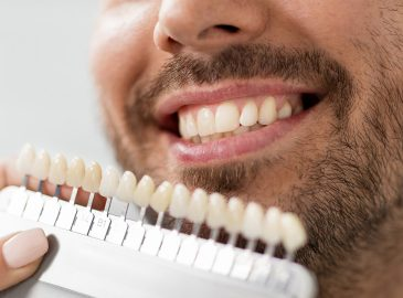 Be Friends with Your Dentist before Friendship Day by Asking for Dental Veneers